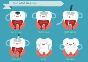 steps of a root canal cartoon